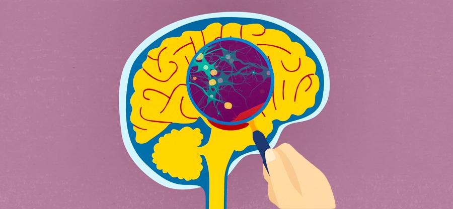 general dementia awarness brain image (1)