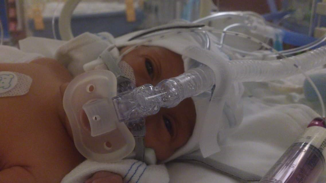 Noah in hospital